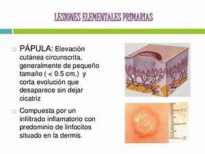 Lesiones elementales de la piel. PRIMARIAS Y SECUNDARIAS.