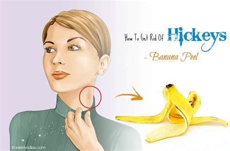 28 working tricks on how to get rid of hickeys fast overnight