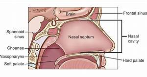 Nose And Sinus Cancer  Head And Neck Cancer Info For Teens