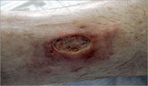 epidermal grafting method  pyoderma gangrenosum
