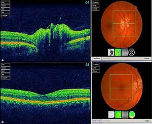 Oct Scans In Our Case  A Oct Revealed Optic Disc Drusen  B