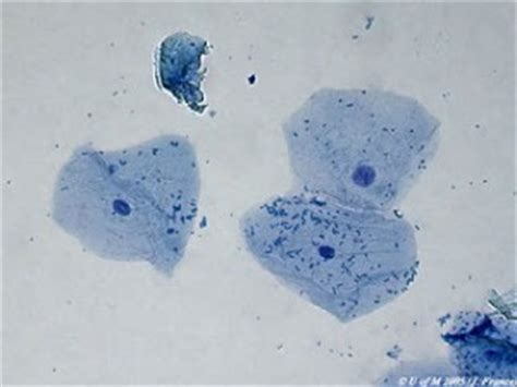 human cheek cells  plant cells biotexan livejournal