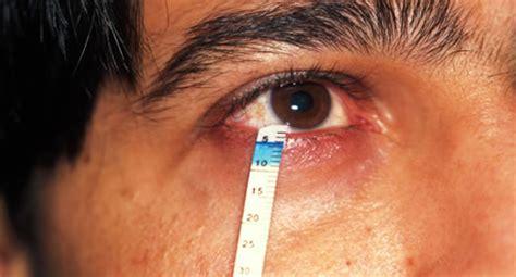 sjoegren syndrom symptome apotheken umschau