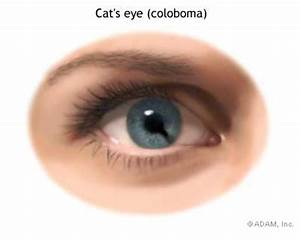 "Coloboma: Humans With ""Cat Eyes"" 