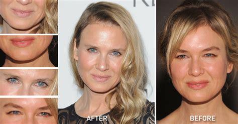 renee zellwegers shocking   anti aging face