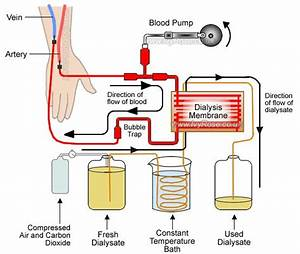 52 Best Images About Kidney Dialysis On Pinterest