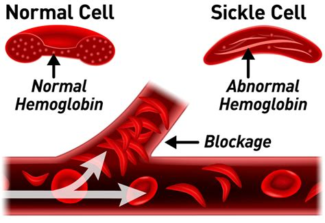 What Is Sickle Cell Anemia? What Are Its Causes, Symptoms. Real Estate Attorney Salary Social Work Act. Custom Designed Business Cards. Atlanta Casualty Insurance Free Emails List. Universities In Irving Tx Mobile Apps Android. Cosmetic Surgery Chicago Il Infiniti Fx Cost. Colleges That Specialize In Music. Small Business Phone Solutions. Breadcrumb Pos Support 5 Year Adjustable Rate
