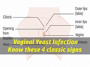 What Does A Yeast Infection Look Like  The 4 Classic Signs