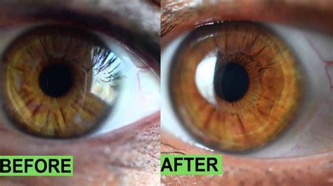 iridology eye color change iriscope iridology camera