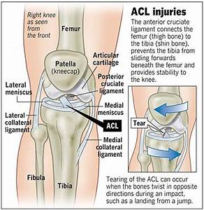 A Patient U0026 39 S Guide To Anterior Cruciate Ligament Injuries