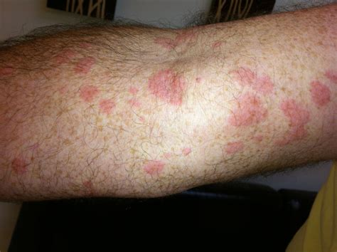 Hives Rash Treatment In Florida Hives Skin Allergy