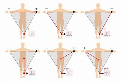 Ecg Leads Limb Augmented Interpretation Placement Ekg