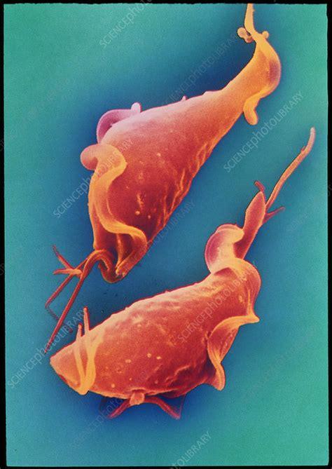 Trichomonas parasite - Stock Image - Z100/0114 - Science ...
