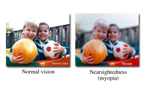 lasik vision correction pepose vision