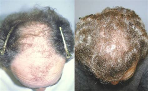 Hair Implants Yonkers Ny 10702 Neograft Hair Transplant In Westchester Ny Park Avenue