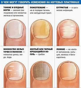 Чем вылечить грибок ногтей на ногах быстро в домашних условиях