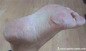 Soigner mycose des ongles