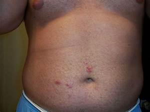 Folliculitis on my neck, legs, and stomach at Folliculitis ...