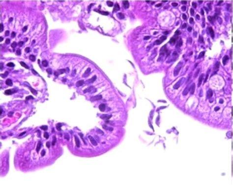 Paraziti intestinali - oxiuri, tenia - ce trebuie facut ...