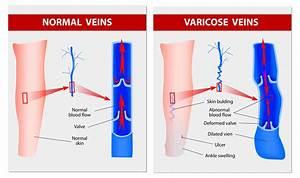 Laser Treatment For Varicose Veins  U0026 Spider Veins