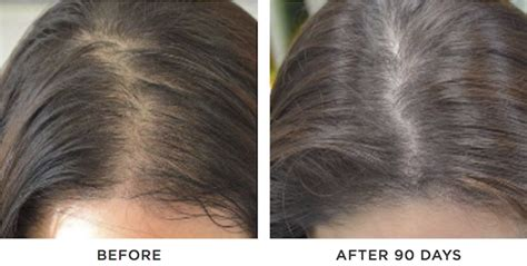 Hair Loss: Compounded Medical Solutions For Men and Women