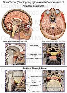 Brain Tumor    Craniopharyngioma   With Compression Of