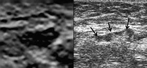 An Axillary Lymph Node Showing Indeterminate Morphology On