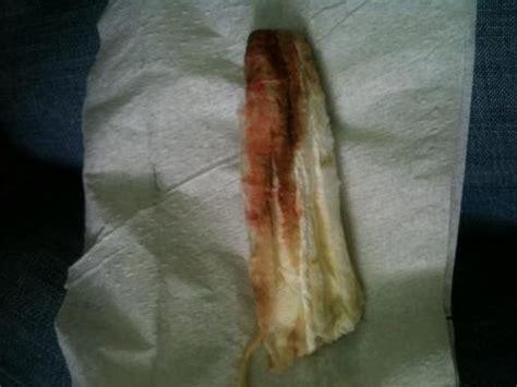 light bleeding after bfp at 10dpo with implantation bleeding my rainbow bean