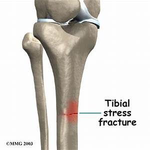 Stress Fracture | Physiotherapy and Recovery