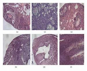 Histology Of Female Reproductive Organs  Ovary And Uterus