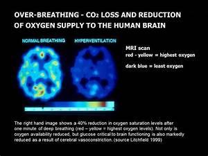 Study Finds That Sleep Apnoea And Alzheimer U0026 39 S Are Linked
