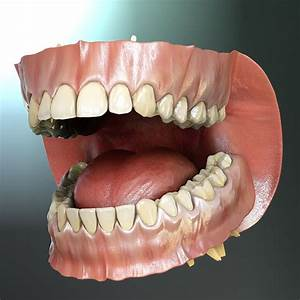 3d Model Orthodontics Mouth Teeth