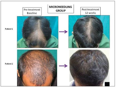 emu oil for hair loss after 3 16 minoxidil side effects revealed 3 natural alternatives