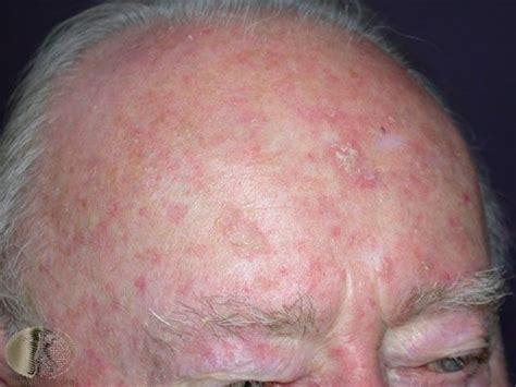 aktiniske keratoser hodebunn oslo hudlegesenter