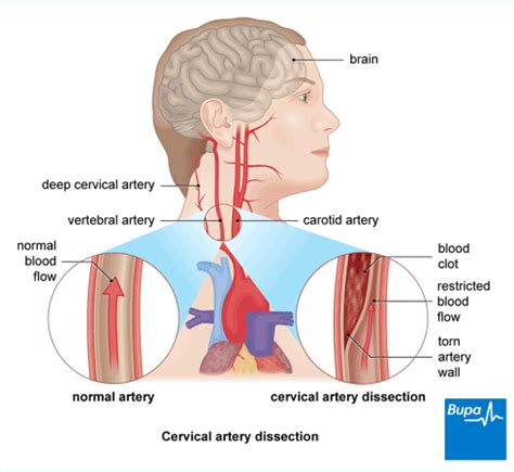 Cervical artery dissection | Health Information | Bupa UK