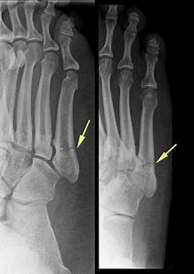 Chip Fracture Ankle