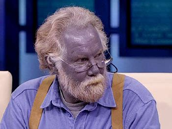 dr oz investigates man turned blue