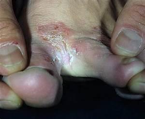 Грибок ноги шелушение стопы