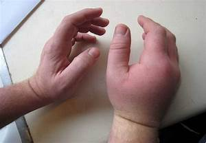 Seven Common Symptoms Of Rheumatoid Arthritis - Tips To ...