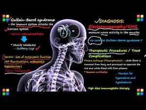 NCLEX Review on... Guillain Barre Syndrome