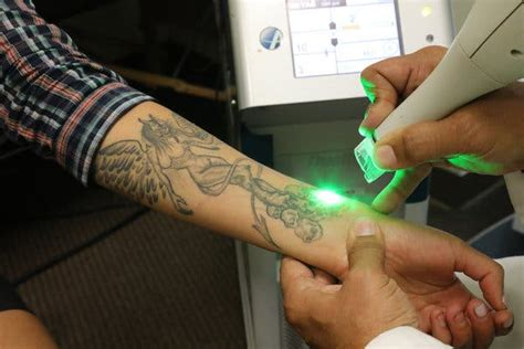 california today starting      tattoo removal   york times