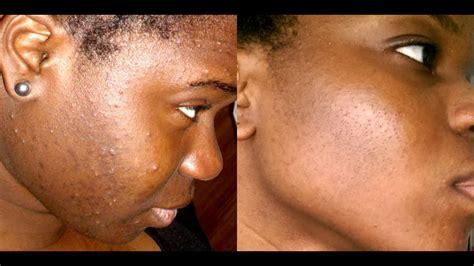 comment avoir une peau nette reduire les cicatrices