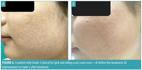 Subcision and Microneedling as an Inexpensive and Safe ...