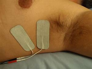 Transcutaneous Electrical Muscle Stimulation Directly To