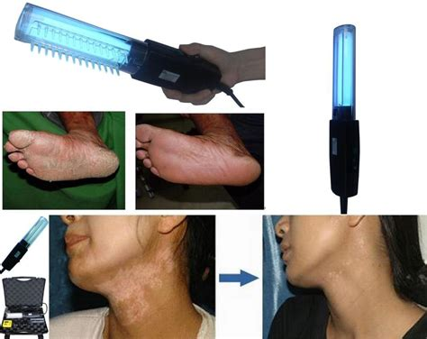 narrow band uvb ls for vitiligo handhold vitiligo light therapy ls narrow band uvb