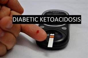 Diabetic Ketoacidosis Symptoms