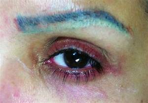 Permanent Makeup Gone Bad! - NaturaLook Institute of ...