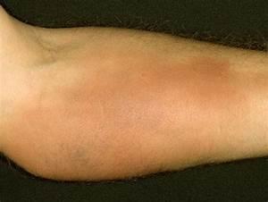 Phlebitis - Pictures, Symptoms, Causes, Treatment  Superficial