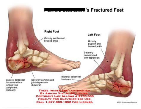 Fractured Feet