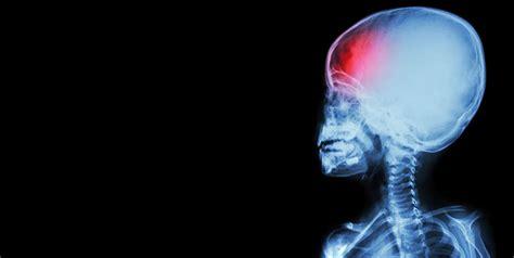 pediatric abusive head trauma   overview